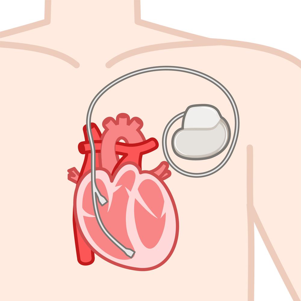 糖尿病の影響で拡張型心筋症に。今はペースメーカーを埋め込んでいます